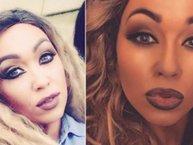 """Cô gái bất ngờ gặp họa vì muốn có """"làn da bánh mật"""" như Beyonce"""