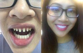 Sau phát ngôn so sánh của Lê Âu Ngâu Anh nếu tháo hết răng sứ thì liệu có ai dám nhìn Nguyễn Thị Thành khi cười không?