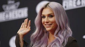 Kesha biểu diễn tại Las Vegas trong 3 đêm
