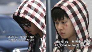 Muôn kiểu lý do khiến idol Kpop đổ máu trên sân khấu