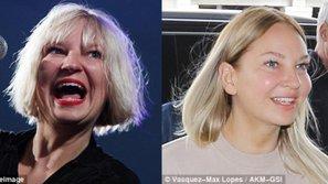 Sia thay đổi nhan sắc chóng mặt, dính nghi án phẫu thuật thẩm mỹ