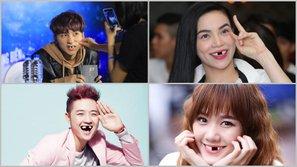 Cười ngất với bộ ảnh: Nếu một ngày sao Việt cũng bị... sứt răng