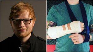 Ed Sheeran bất ngờ lộ ảnh băng bó vì tai nạn giao thông khiến fan lo lắng