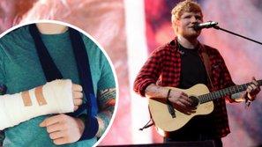Ed Sheeran hủy tour châu Á sau khi bị gãy cả hai tay vì tai nạn giao thông