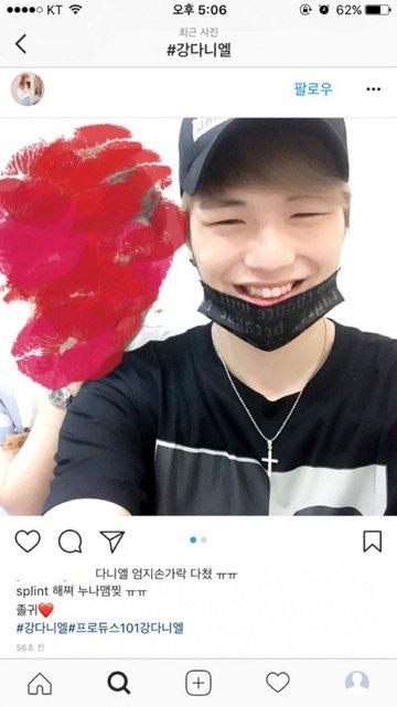 Kang Daniel bị thương ngón tay cái phải băng bó