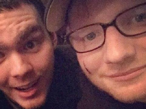 Ed Sheeran rách mặt